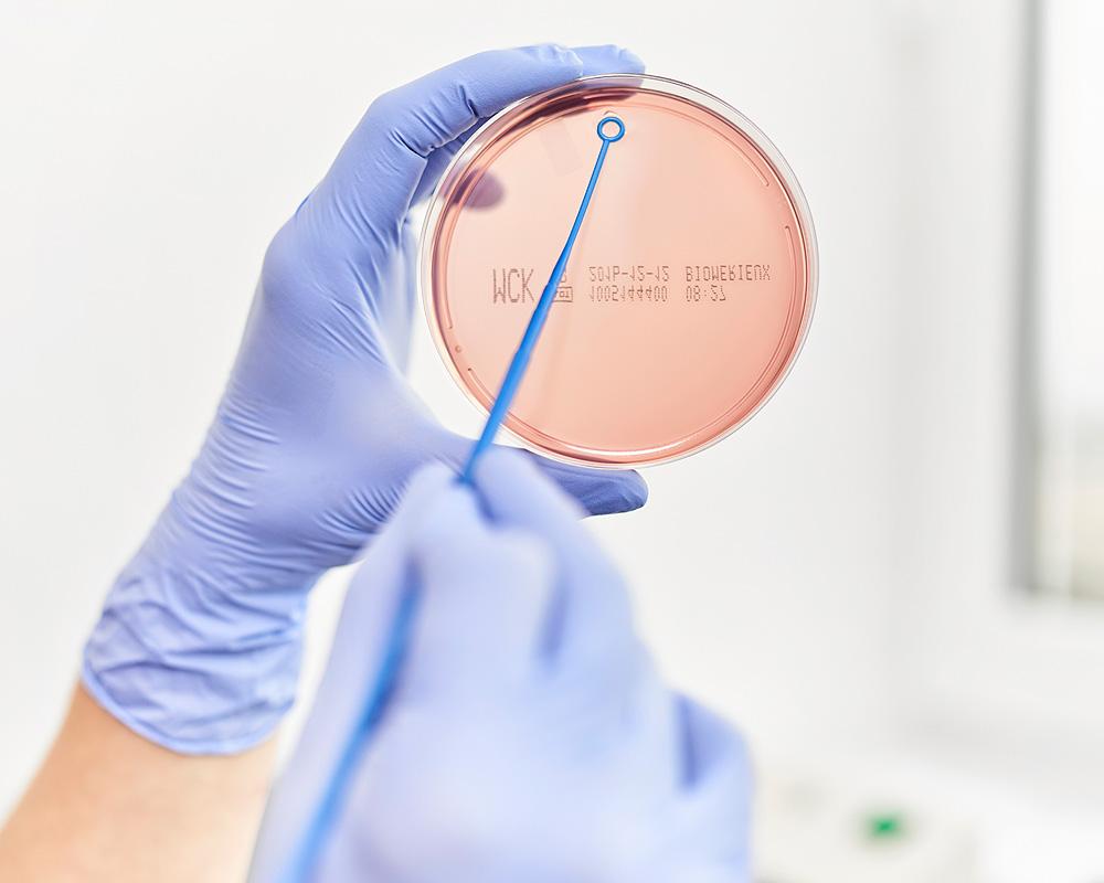 Urinkultur-Unsere Praxis Urologie Emmendingen