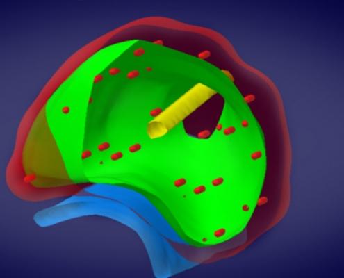 3D-Modell- Brachytherapie Urologie Emmendingen