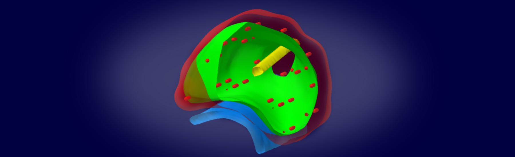 3D-Modell- Brachytherapie Zentrum für Brachytherapie Südwest
